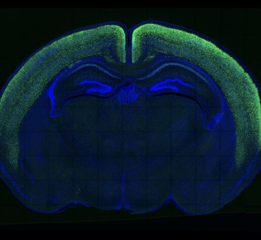 Human-specific genes, cortical development, and brain evolution.