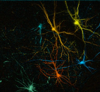 Function and plasticity of transplanted human neurons: from circuit development to brain repair.